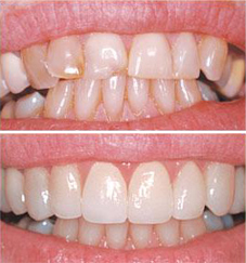 Przebarwienie korony zęba