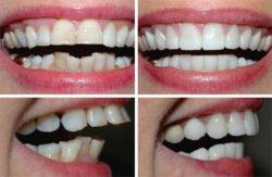 Korekta kształtu zęba