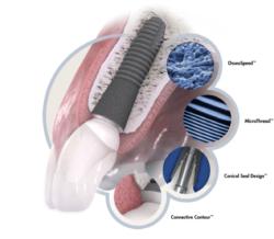 Budowa implanta