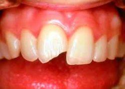 Złamanie brzegu siecznego zęba przedniego