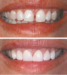 Zamknięcie przerw między zębami (diastemy)