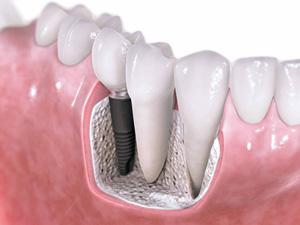 Jak wygląda implant