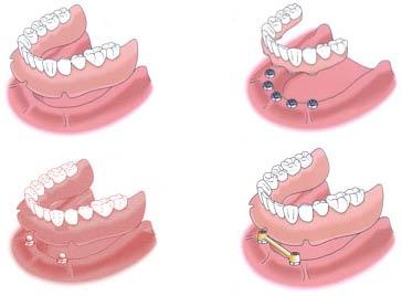 Implantoprotetyka w praktyce