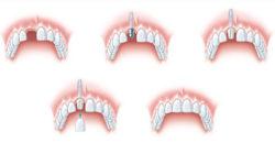 Jak wygląda zabieg zmocowania korony zęba.