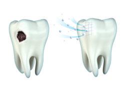 Fluoryzacja zębów