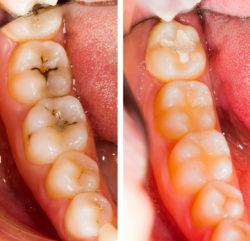 Impregnacja zębów przed i po