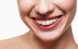 Nowoczesna ortodoncja w ExcelDent