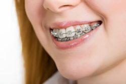 Ortodonta Szczecin z Kliniki Exceldent zapewni Twojemu dziecku piękny uśmiech!