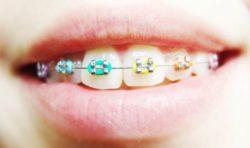 Ortodoncja w Klinice Exceldent